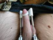 I have been using this device and I've gained quite a bit of length I just added a new 1 inch stretcher
