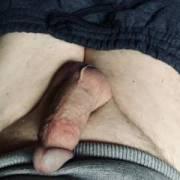 Dick pic, swollen dick pic.