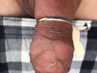 My cock after pumping for 40 mins or so with ring.