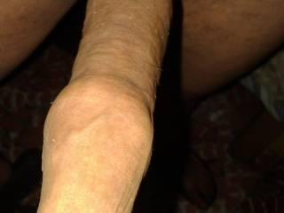 skin of uncut dick