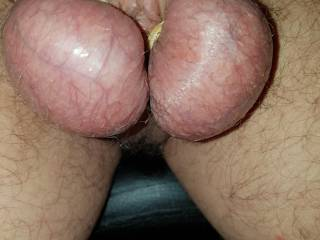 Balls in elastic bands Need a helper (female) to add some wax !!!