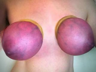 my tits tied tight with many layers of rubber bands until they turned purple