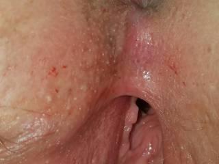 Homemade anal spunk whores