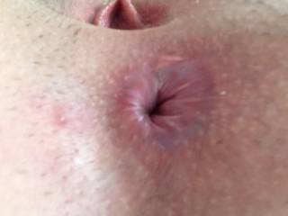 Close up of my butt hole