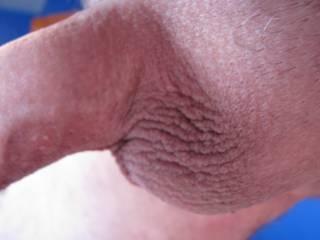 Smooth shaved balls.