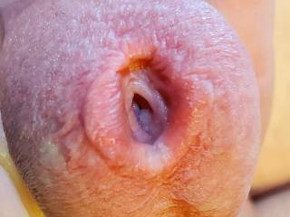 Open penis hole glans cock dick head