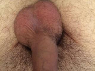 Recently got circumcised Hard pics to follow