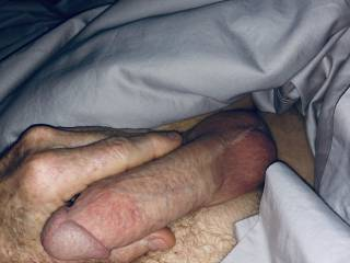 Swollen penis in the morning.