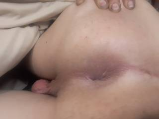 The ass hole open for buisness