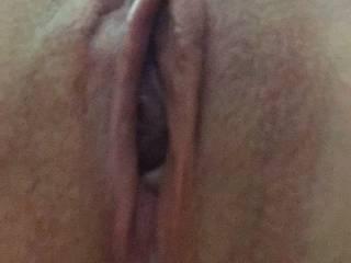 Using penis plugs