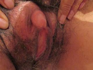 Wow! Beautiful clit! Looks like a little cockhead! I would love to kiss,lick and suck your huge clit for as long as you can stand it! I want to feel your pussy hair on my face while I suck you to dozens of orgasms!