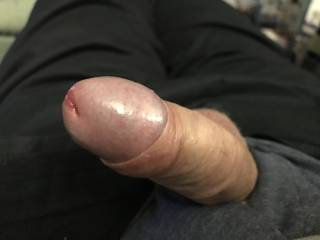 Comments on now my foreskin is pulled back
