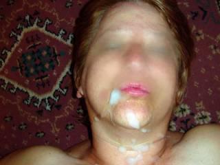 Hot facial