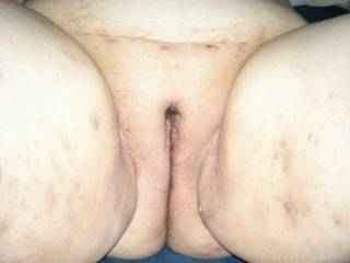 I love fat pussy's and your girls is fantastic. I'd love to lick and fuck that pussy.