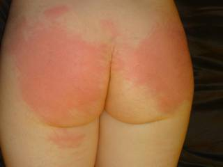 Cindy\'s phat round red ass after she earned a painful lesson Sub Teresa gave her after a deep hard fucking.