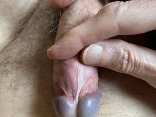 Easing my foreskin right back as far as possible.