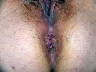 Close up of wife Lydia Bersot\'s hard used anus and cunt.