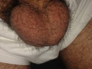 Was bored and didnt shaved, didnt have hair for some time now and wanted to see how they look ;) Think much better when they are shaved, don\'t you;)?