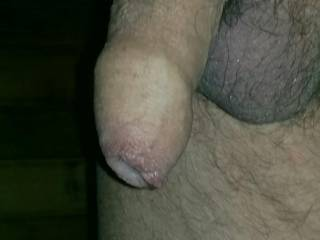 Here is a close up of my cock. See the precum build up? That's from looking at hot photos on Zoig.