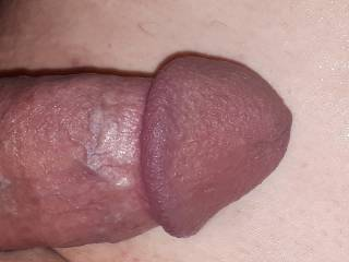 Anyone interested in licking my head?