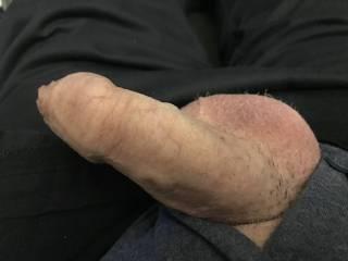 My head is stretching my foreskin