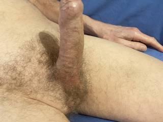 It looks like the foreskin is starting to ease back all on it\'s own.