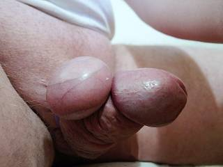 just tied my balls on top of my cock, balls match the size of my cockhead :-)