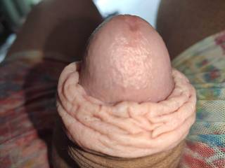 Puffy foreskin