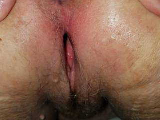 Gaping open pussy