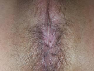 Hairy bum