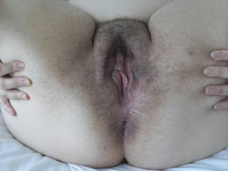 stunning, i adore hairy would you to see those lips swallow his circumcised cock, mmmm