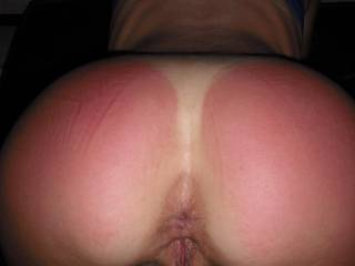 if I did not notice your back being burnt I would of guess you were a naughty girl and your man gave you a much needed spanking