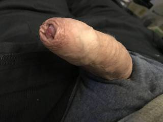 Any one want to push my foreskin all the way back  And how ?