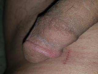 Close up pic of my dick with razor burn.