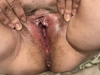 A friend from Zoig want to see her open