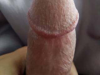 Ever wonder what the skin ACTUALLY looks like on an erect penis? It's not like in porn videos. It's much more intense and soft and inviting.