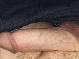 Woke up with a swollen penis this morning, took a photo.