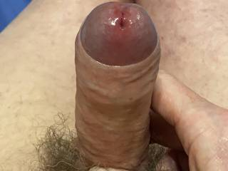 Step three- Make you glans swell so much that your foreskin is eased back unaided.