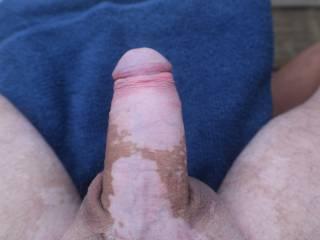 Dick pic.