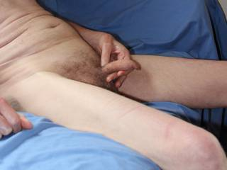 Do you think that my foreskin looks a little puckered here?