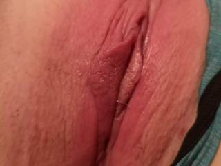 My swollen pussy after getting it pounded hard