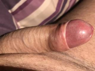 """Im feeling horny and would like company to pust my foreskin all the way back  """" how ever they won't?"""