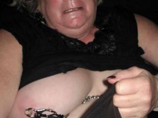 Dear o dear, your nipple has turned white!! :-o
